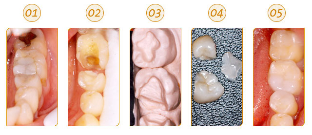 diagnostico tratamiento operatoria dental: